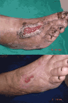 Before & After Pictures of an Ozone Treated Wound